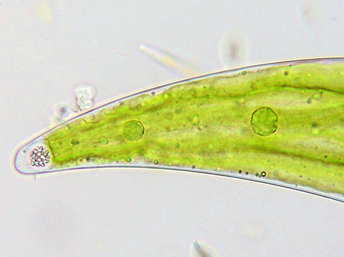 Closterium moniliferum, crystaline granules