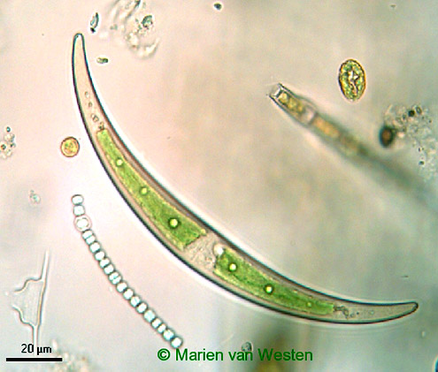 Closterium calosporum, another cell