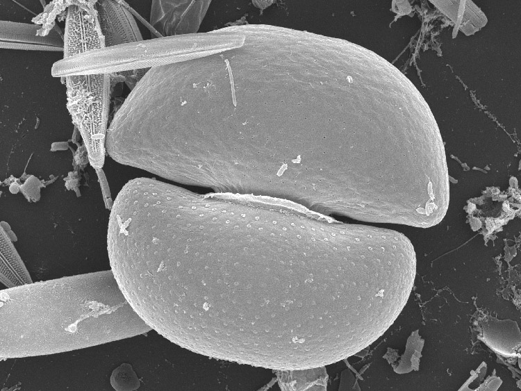 SEM picture of C. taxichondriforme